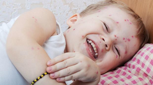 лечение крапивницы аллергии у взрослого