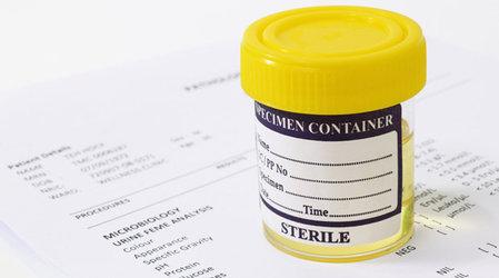 лечение эритроцитов в моче Почему эритроциты в моче повышены: причины, норма